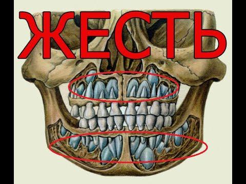 Почему ночью болит зуб а днем нет