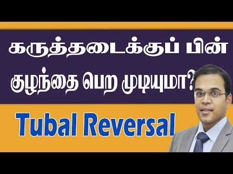👪tubal-reversal-meaning-tamil-கருத்தடைக்குப்பின்-குழந்தை-பெற-முடியுமா-top-laparoscopy-tubal-revers