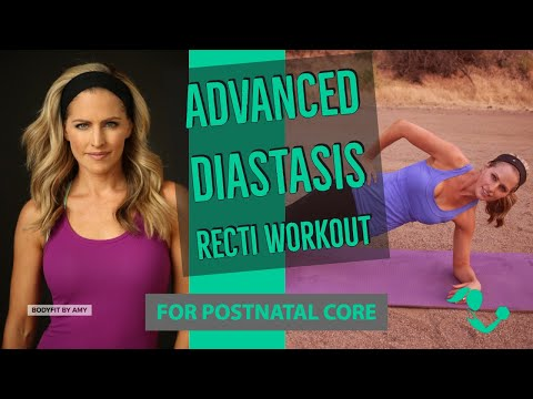 17 Minute Advanced Diastasis Recti Core Workout For Ab Separation After Pregnancy