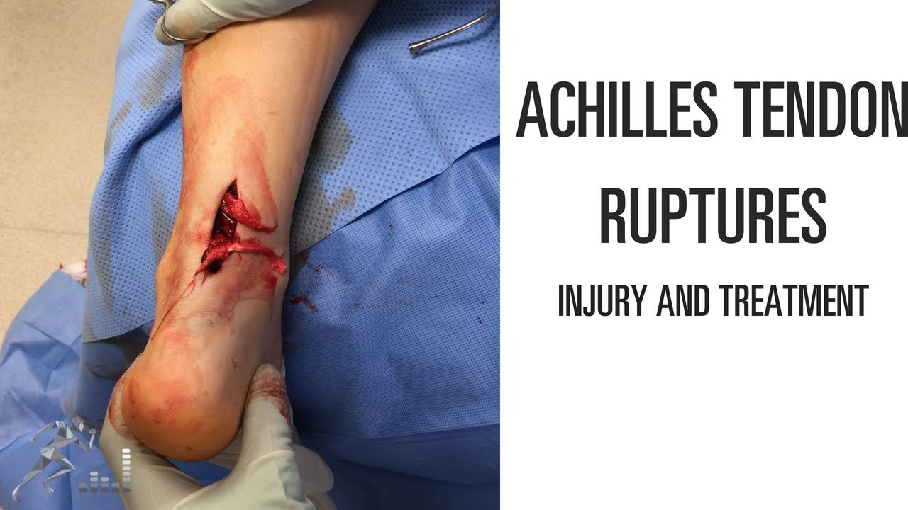 achilles tendon tear treatment options