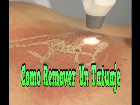 Para Quitar Tatuajes como remover un tatuaje, como quitar tatuajes en casa, remedios