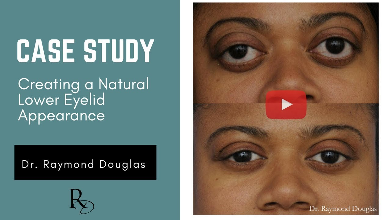 Case Study Creating A Natural Lower Eyelid Appearance In Thyroid