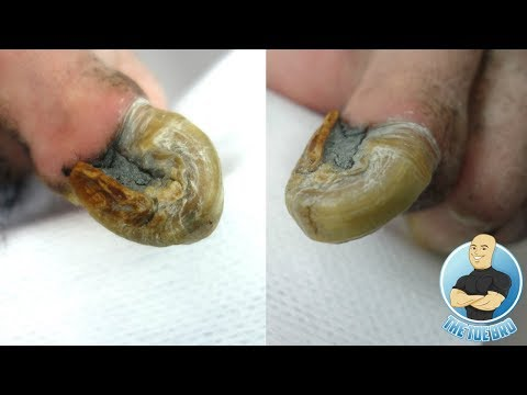 RAM'S HORN 100% REAL UNBELIEVABLE CURVED OLD TOENAIL BEING TRIMMED