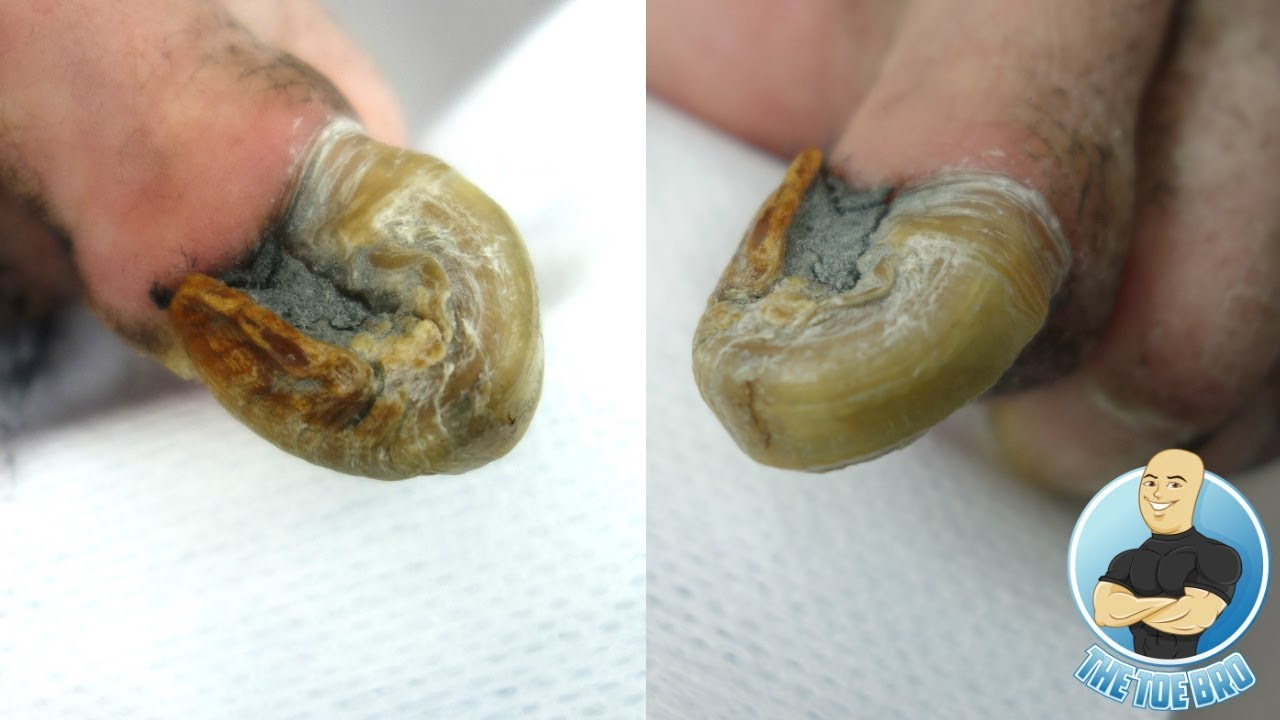 RAM\'S HORN 100% REAL UNBELIEVABLE CURVED OLD TOENAIL BEING TRIMMED ...
