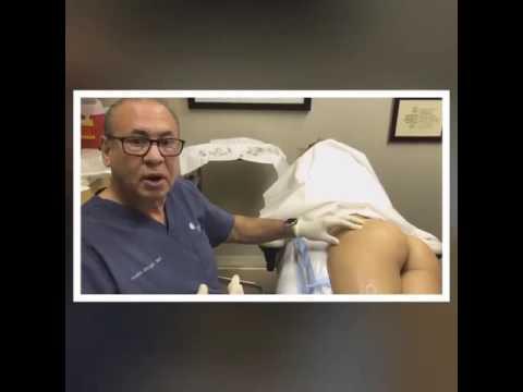 Sculptra Butt Lift Procedure - Rejuvalife Vitality Institute by Rejuvalife  Vitality Institute