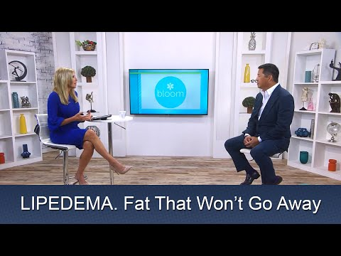 Lipedema Liposuction Surgery | In the News NBC Bloom | Lipo 360° Legs | Cure | Expert Dr. Thomas Su