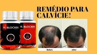 HAIR LOSS BLOCKER FUNCIONA? HAIR LOSS BLOCKER 2.0/ TRATAMENTO PARA CALVICIE!