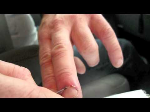 Removing splinter from under thumb nail