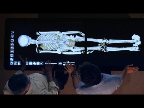 Revealed: How King Tut Died