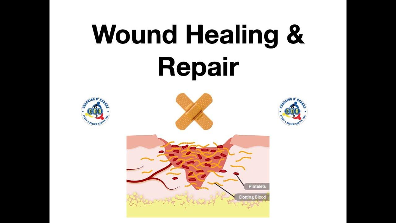 Download Surgery Pathology Wound Healing & Repair