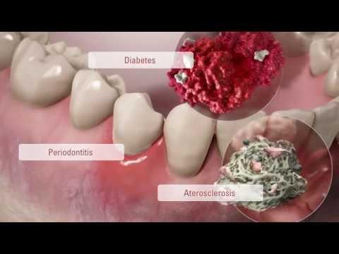 comunicación-entre-células:-salud-bucal-y-enfermedades-sistémicas