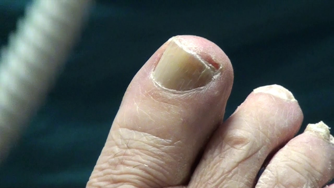 Diabetic Toenail Trimming on Patient in Podiatry office - YouTube