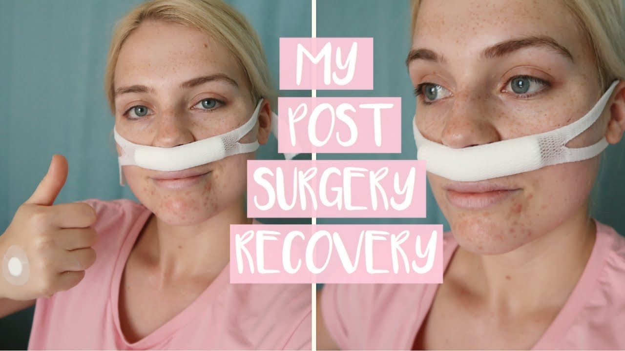 WHAT TO EXPECT AFTER NASAL SURGERY   First Week of Post ...