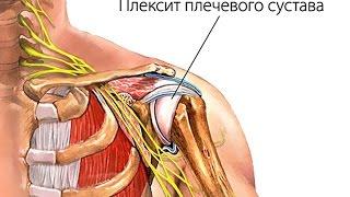 видео Капсулит плечевого сустава: причины, симптомы, лечение