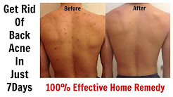 hqdefault - Back Acne Homemade Remedies