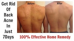 hqdefault - Cures For Back Acne Fast