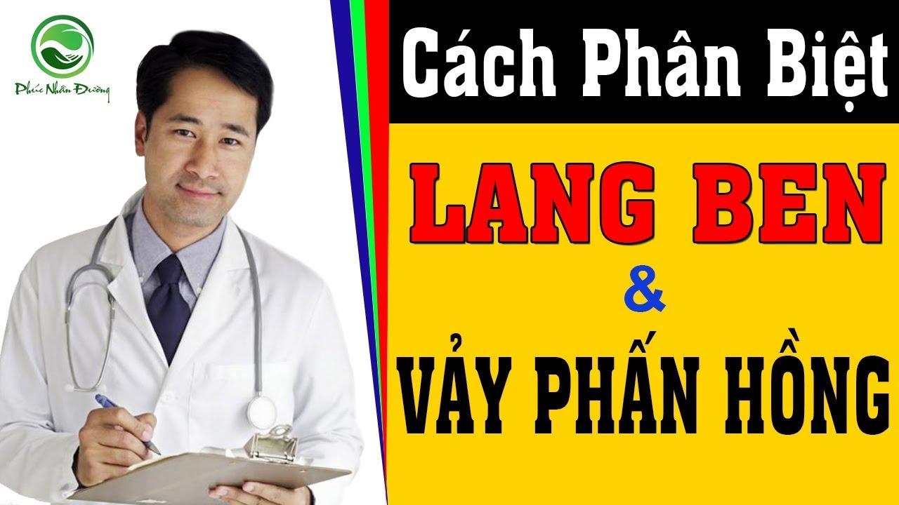 Cách phân biệt bệnh Lang Ben và bệnh Vảy Phấn Hồng