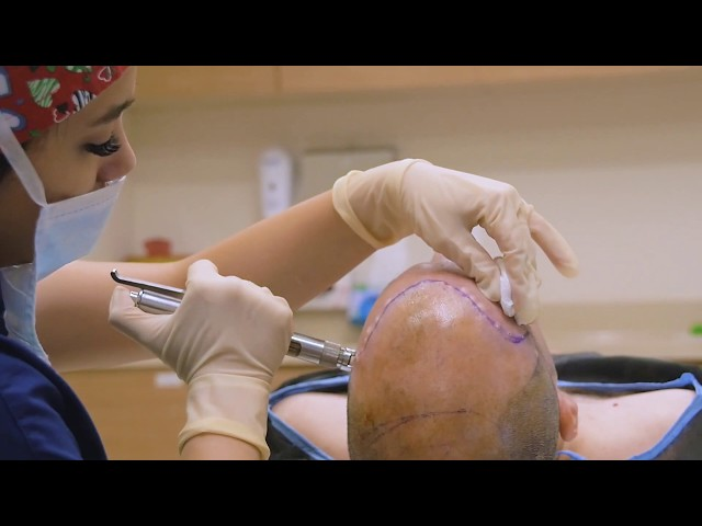 Hair Transplant in Turkey with Capilclinic
