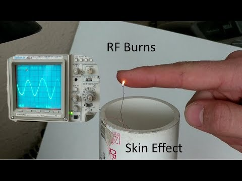 RF Burns and the Skin Effect - YouTube