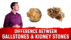 The Big Difference Between Gallstones and Kidney Stones