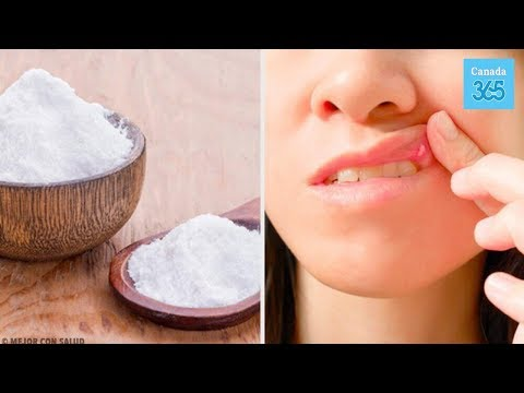 8 Remedies to Heal Mouth Ulcers - Canada 365