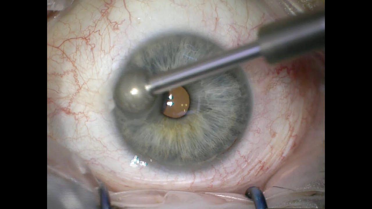 Alcohol debridement and diamond burr for recurrent corneal erosions
