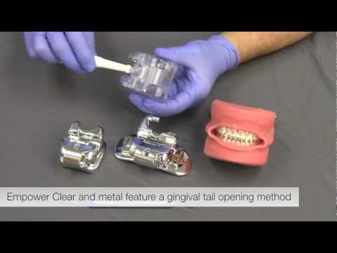 American Orthodontics Empower Self Ligating Braces Opening and Closing - Product Manager Video