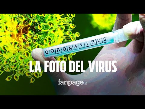 Coronavirus, la foto mostra i minimi dettagli: ecco come è fatto e perché si chiama così