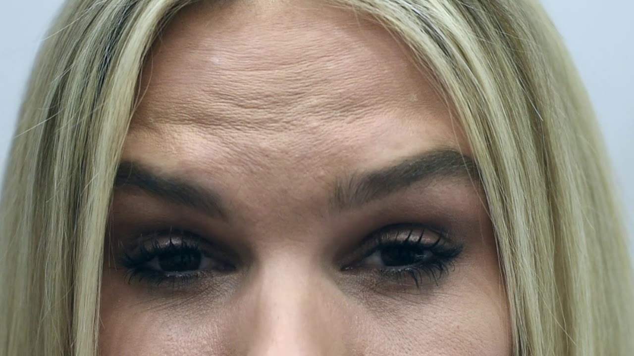 Wrinkle Relaxers - Anti Wrinkle Injections Perth | MIRA Clinic