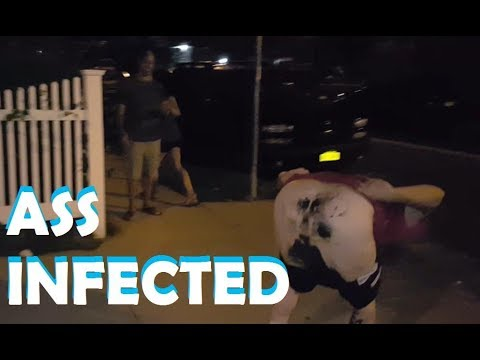 Bagel's Ass gets infected during the Zombie Apopalypse