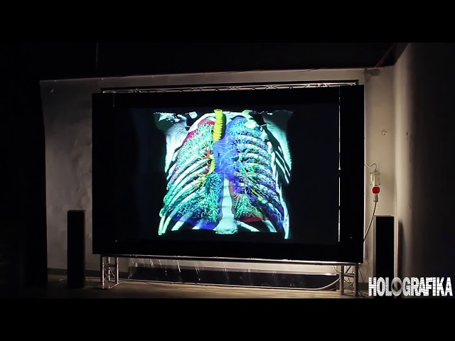 Medical volumetric data demonstration on HoloVizio