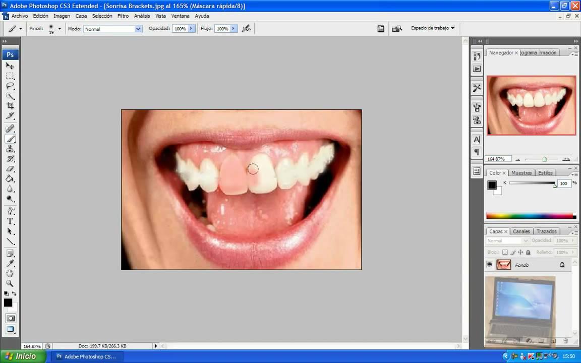 Blanquear dientes y quitar brackets con el photoshop youtube - Como blanquear los dientes en casa ...