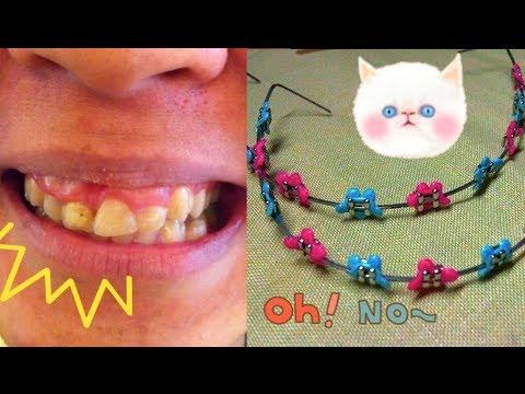 จัดฟันคิ๊ตตี้ จัดฟันมิ๊กกี้ (fashion braces)