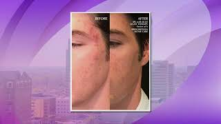 Fighting Acne with Wells Plastic Surgery and Skin Care