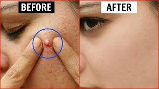 एक ही रात में Pimples हो जाएंगे गायब - Remove Pimples Overnight   Anaysa