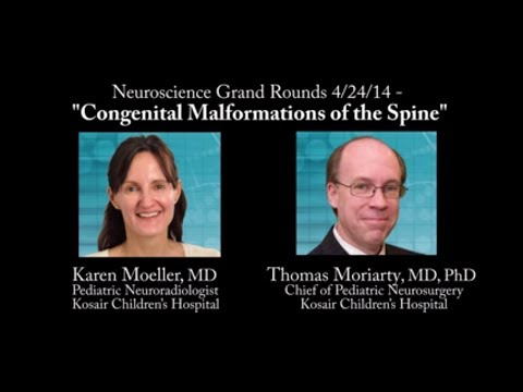 """""""Congenital Malformations of the Spine"""""""