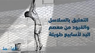 شاهد: جرائم وبشاعات ميليشيا الحوثي بحق المختطفين في سجونها