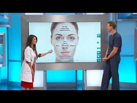 hqdefault - Acne An Underlying Symptom