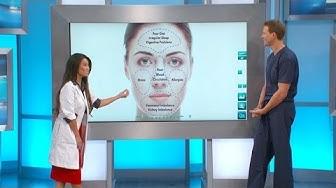 hqdefault - Causes Acne Lower Cheek