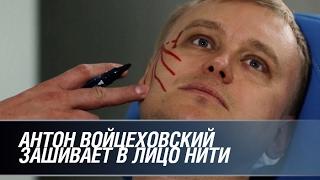 Что не попало в эфир  Войцеховский зашивает в лицо нити