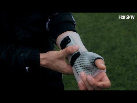 hvordan brækker man sin arm