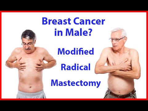 How to do MRM (Breast Cancer Surgery - Modified Radical Mastectomy) in Male by Dr Majid Ahmed