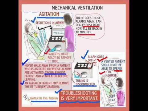 care for mechanically ventilated patients The care of the mechanically ventilated patient is a fundamental component of a  nurse's clinical practice in the intensive care unit (icu) published work relating.