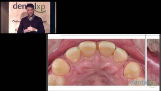 Virtual Esthetic Smile Design_jCD 29-4 Thumbnail