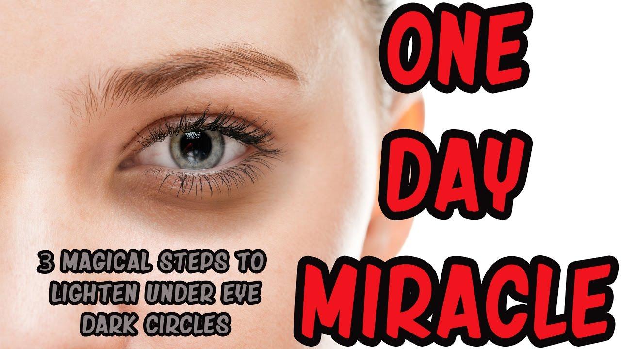3 Magical Steps to Lighten Dark Circles Under Eyes in 1 ...