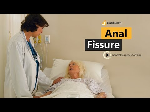 Anal Fissure | Surgery Animation Video | Medical Education | V-Learning | Sqadia.com