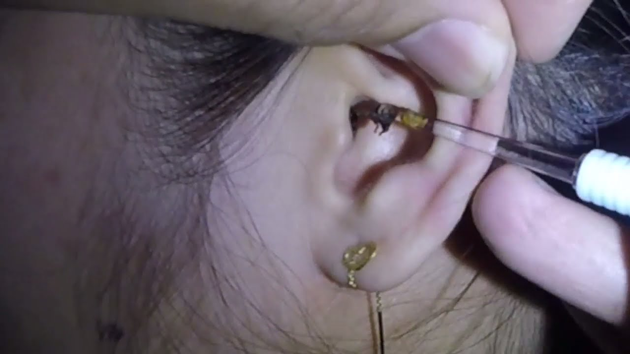 Girls Nasty Black Earwax Removal - Youtube-9810
