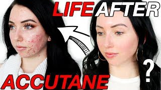 Was it Worth it?! 6 Months POST-ACCUTANE | Lasting Side Effects, Scarring, Breakouts Coming Back?!