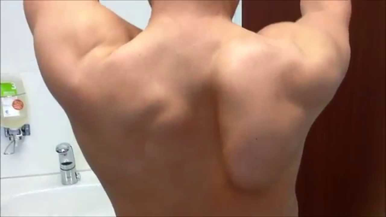 Image result for Winged Scapula