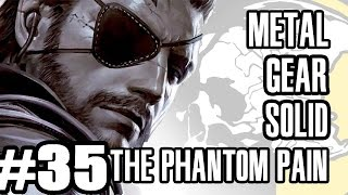 Best Friends Play Metal Gear Solid V - The Phantom Pain (Part 35)
